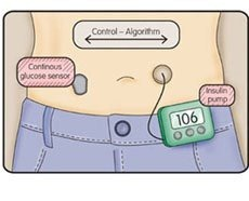 ArtificialPancreas768951_thumb4